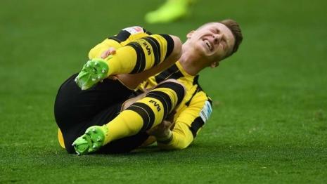 Шюррле, Дурм и Ройс не сыграют против «Баварии»